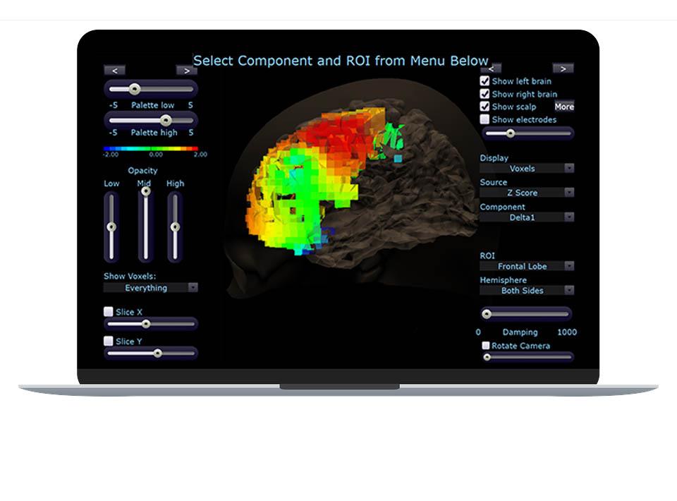 brain map qeeg